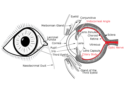 eyedrawing-glaucoma-a
