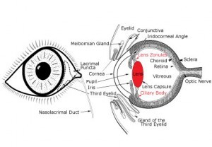 eyedrawing-cataract-b